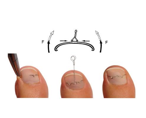 Batık tırnak tel uygulaması
